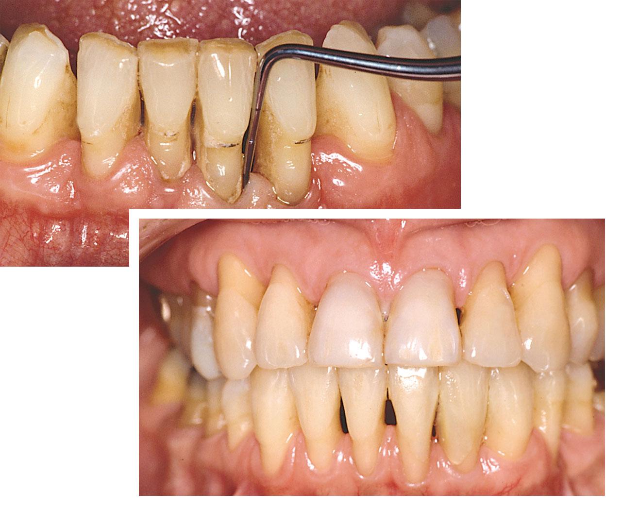 Parodontitis Tandkoedbetaendelse Herning